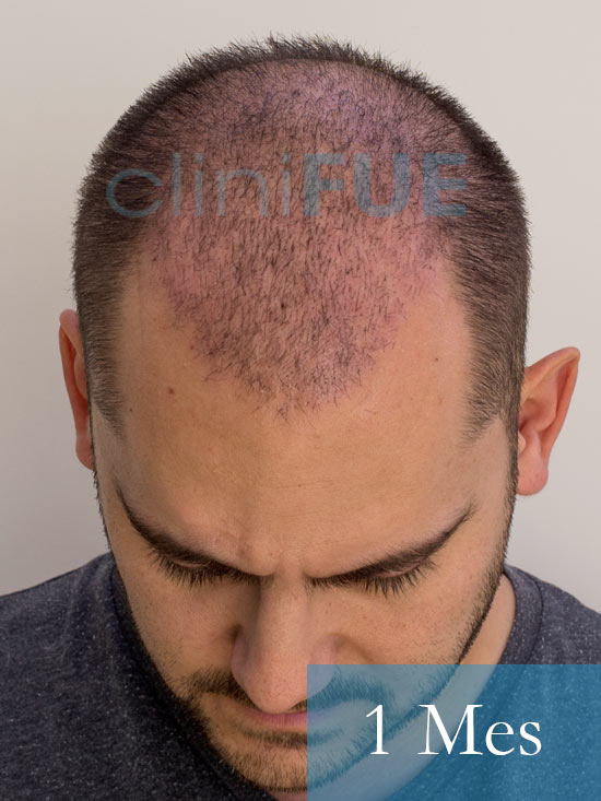 Sebastian 30 años Murcia trasplante capilar turquia 1 mes 2