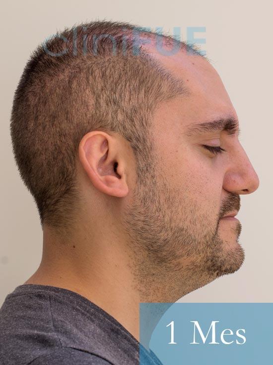Sebastian 30 años Murcia trasplante capilar turquia 1 mes 3