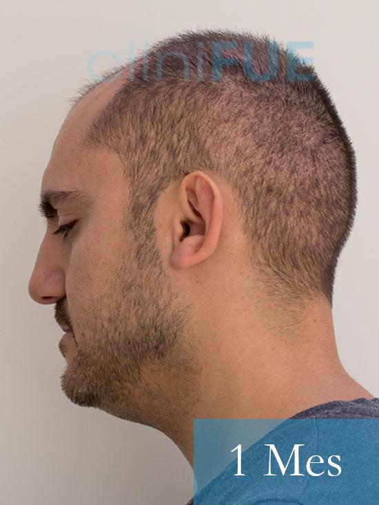 Sebastian 30 años Murcia trasplante capilar turquia 1 mes 4