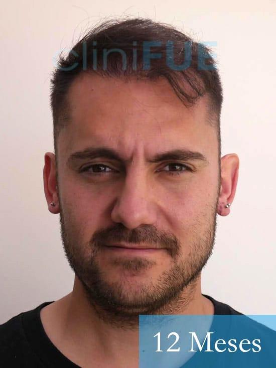 Sebastian 30 años Murcia trasplante capilar turquia 12 meses