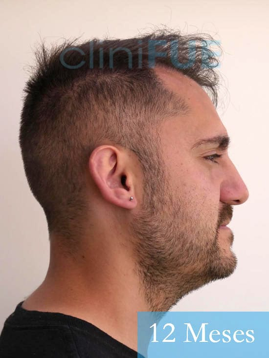 Sebastian 30 años Murcia trasplante capilar turquia 12 meses 3
