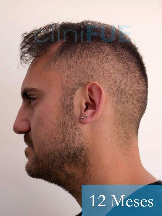 Sebastian 30 años Murcia trasplante capilar turquia 12 meses 4