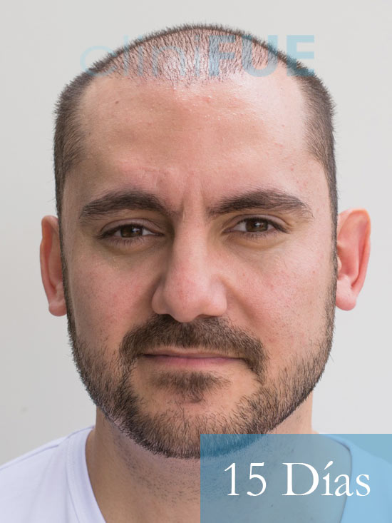 Sebastian 30 años Murcia trasplante capilar turquia 15 dias 1