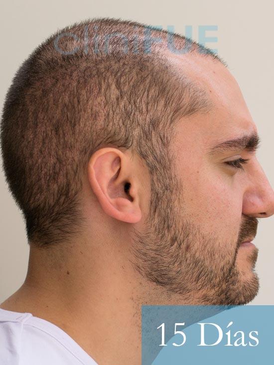 Sebastian 30 años Murcia trasplante capilar turquia 15 dias 4