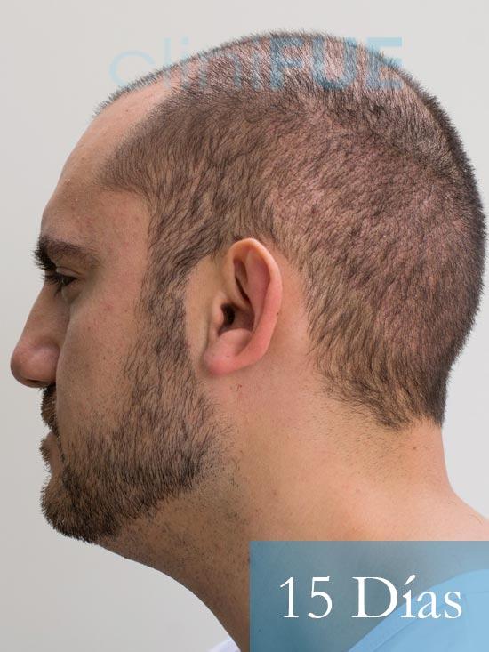Sebastian 30 años Murcia trasplante capilar turquia 15 dias 5