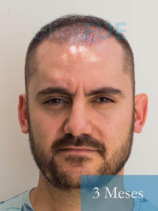 Sebastian 30 años Murcia trasplante capilar turquia 3 meses