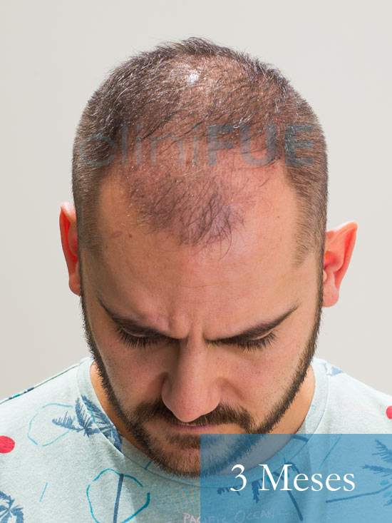 Sebastian 30 años Murcia trasplante capilar turquia 3 meses 2