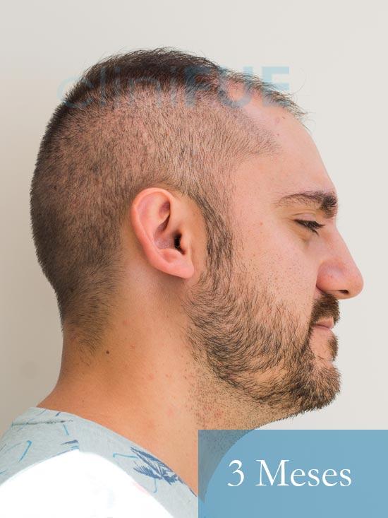 Sebastian 30 años Murcia trasplante capilar turquia 3 meses 4