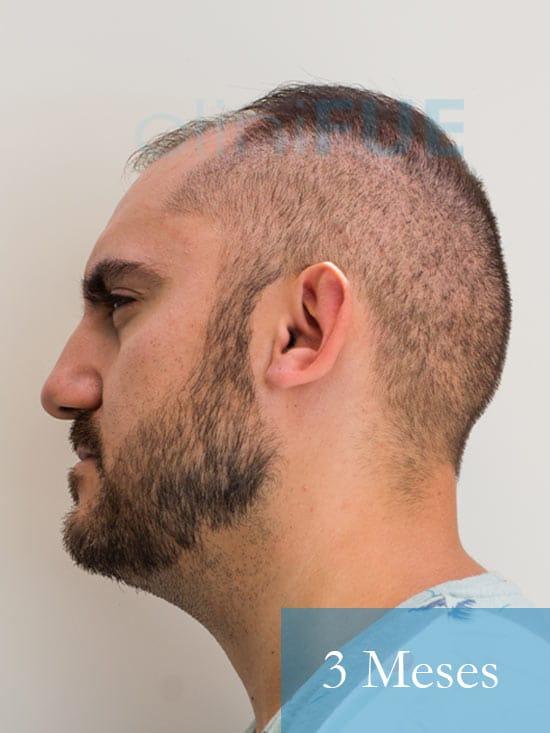 Sebastian 30 años Murcia trasplante capilar turquia 3 meses 5