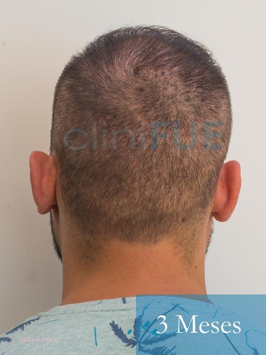 Sebastian 30 años Murcia trasplante capilar turquia 3 meses 6