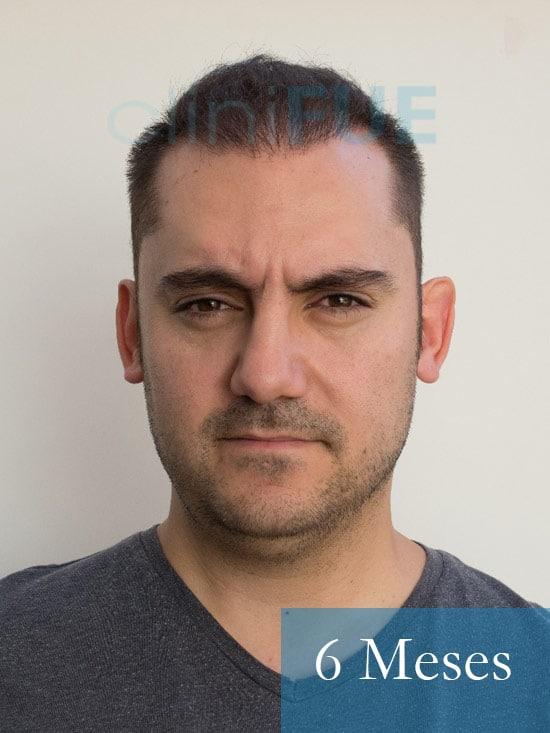 Sebastian 30 años Murcia trasplante capilar turquia 6 meses