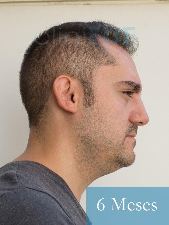 Sebastian 30 años Murcia trasplante capilar turquia 6 meses 4