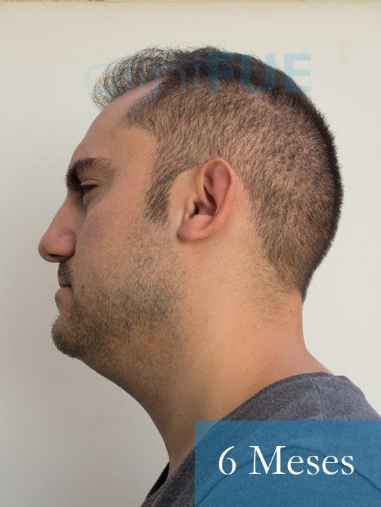 Sebastian 30 años Murcia trasplante capilar turquia 6 meses 5