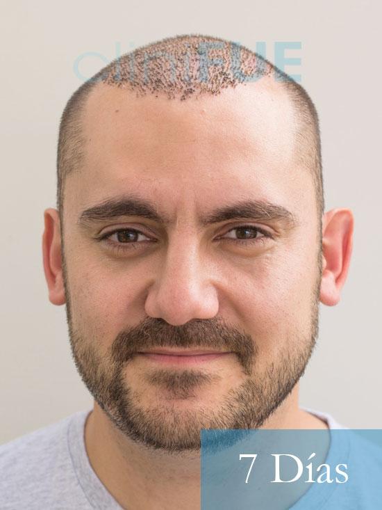 Sebastian 30 años Murcia trasplante capilar turquia 7 dias
