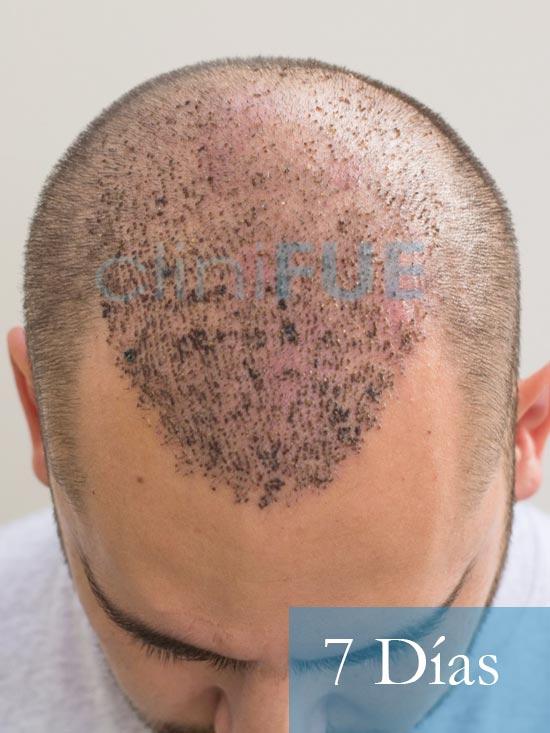 Sebastian 30 años Murcia trasplante capilar turquia 7 dias 2