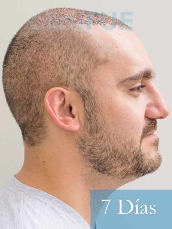 Sebastian 30 años Murcia trasplante capilar turquia 7 dias 4