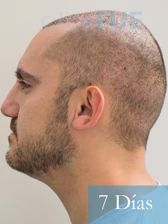 Sebastian 30 años Murcia trasplante capilar turquia 7 dias 6