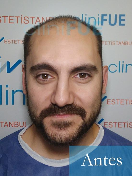 Sebastian 30 años Murcia trasplante capilar turquia Antes