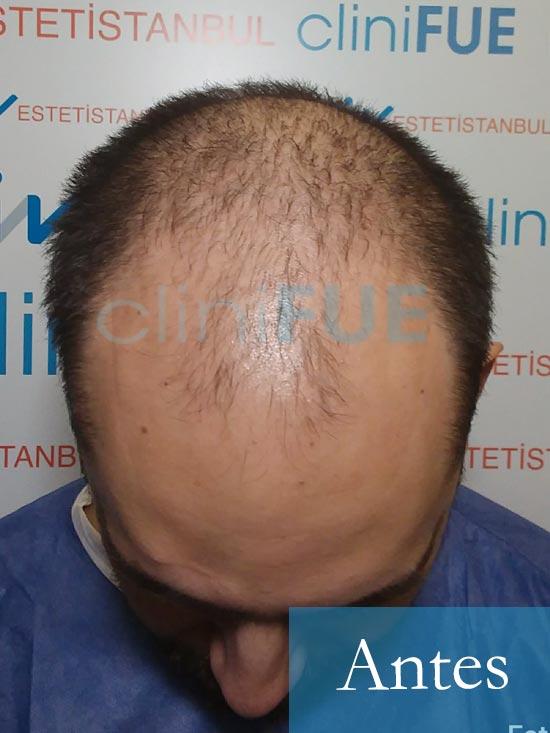 Sebastian 30 años Murcia trasplante capilar turquia Antes 2