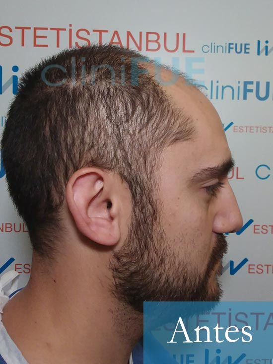 Sebastian 30 años Murcia trasplante capilar turquia Antes 3