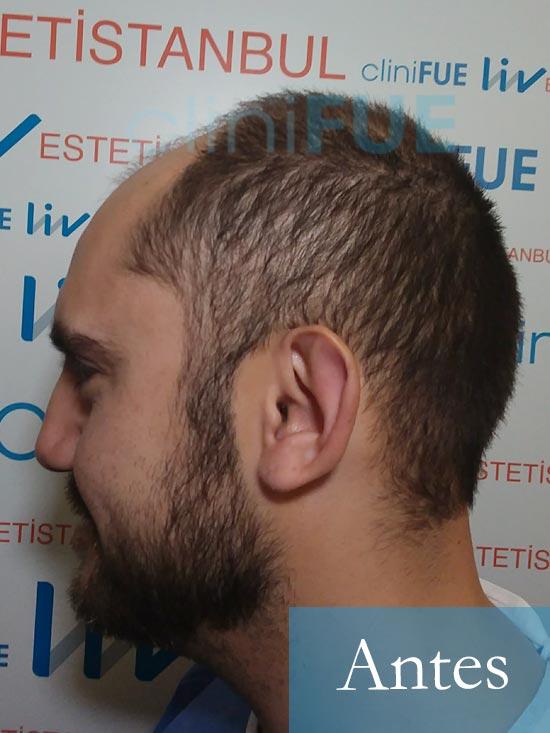 Sebastian 30 años Murcia trasplante capilar turquia Antes 4