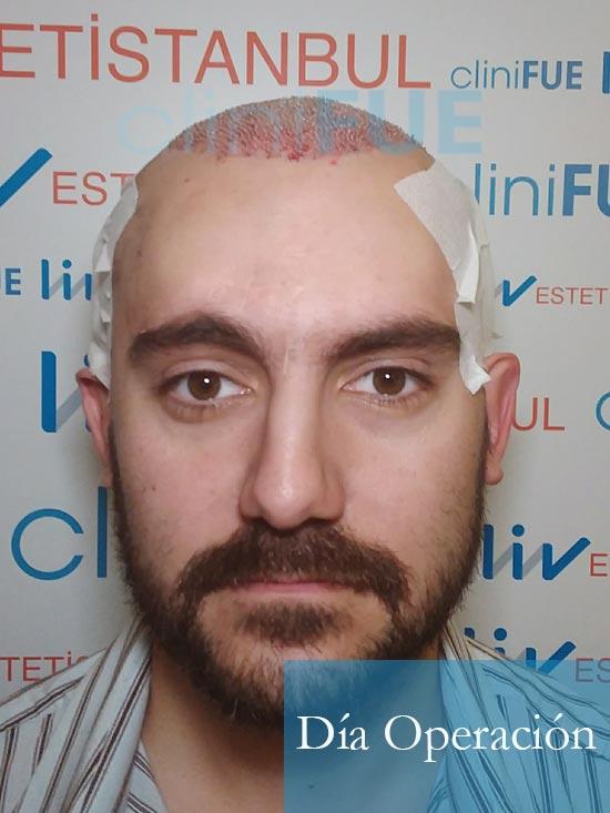 Sebastian 30 años Murcia trasplante capilar turquia dia operacion 1