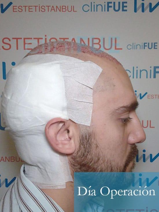 Sebastian 30 años Murcia trasplante capilar turquia dia operacion 3