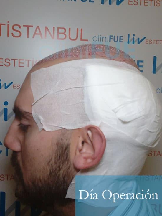 Sebastian 30 años Murcia trasplante capilar turquia dia operacion 4