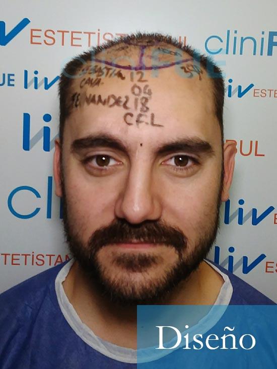 Sebastian 30 años Murcia trasplante capilar turquia diseño