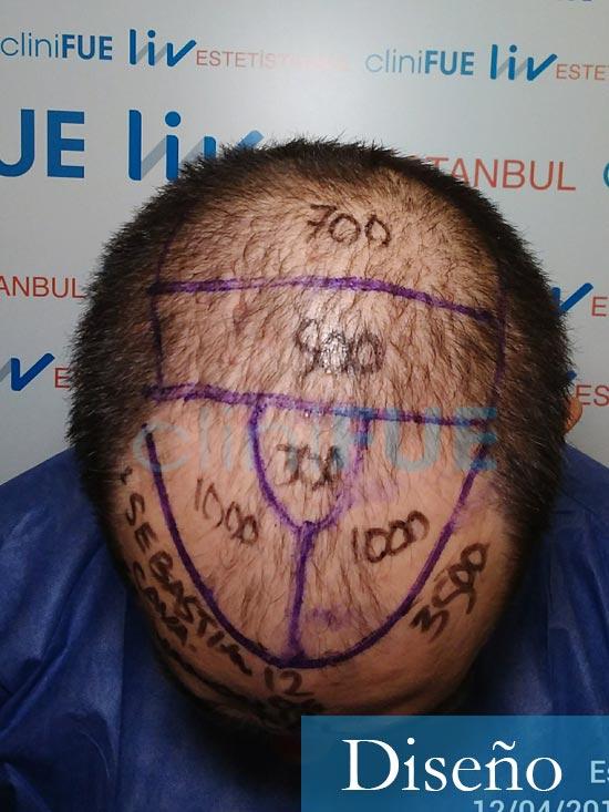 Sebastian 30 años Murcia trasplante capilar turquia diseño 2