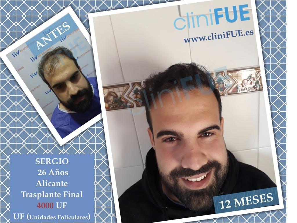 Sergio 26 años Alicante trasplante capilar turquia Antes 1