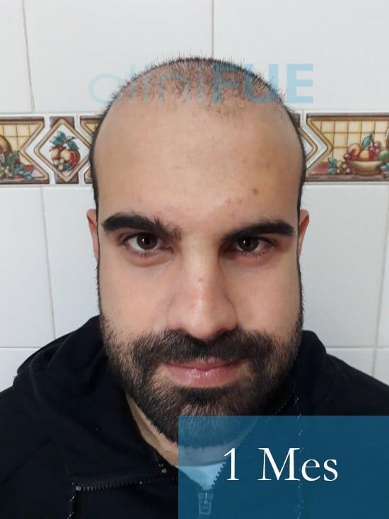 Sergio 26 años Alicante trasplante capilar turquia 1 Mes