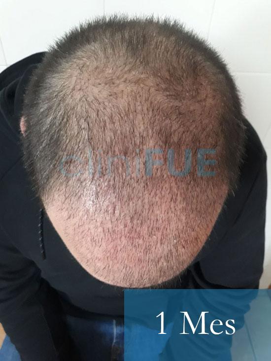 Sergio 26 años Alicante trasplante capilar turquia 1 Mes 2
