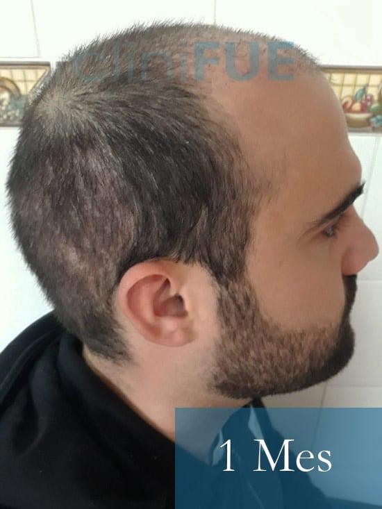 Sergio 26 años Alicante trasplante capilar turquia 1 Mes 3