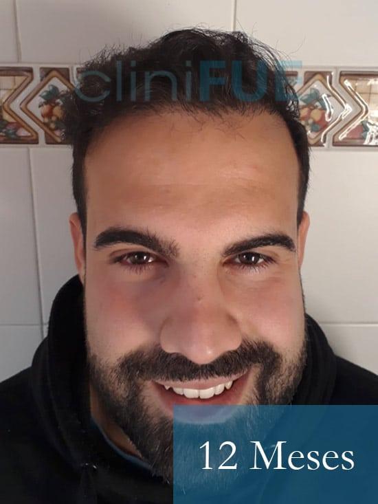 Sergio 26 años Alicante trasplante capilar turquia 12 Meses