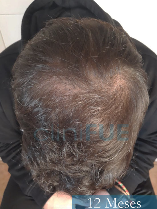 Sergio 26 años Alicante trasplante capilar turquia 12 Meses 2