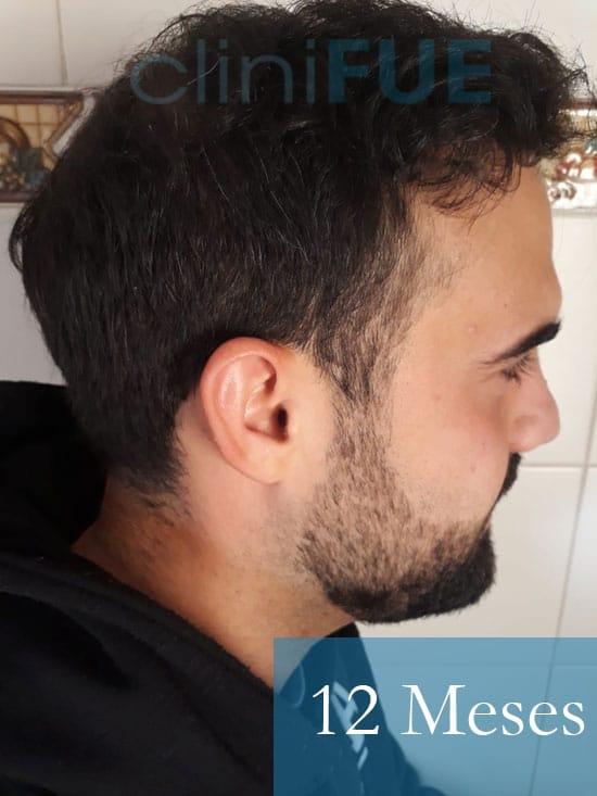 Sergio 26 años Alicante trasplante capilar turquia 12 Meses 3
