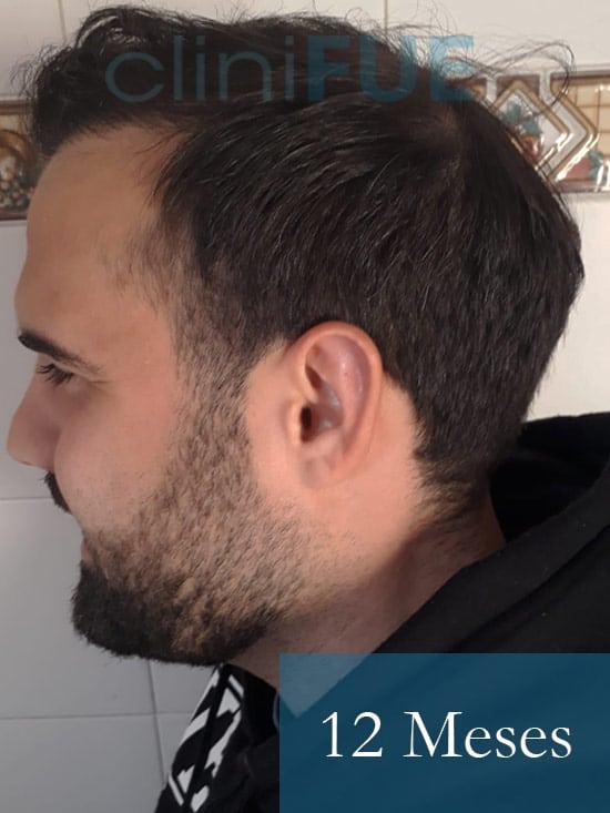 Sergio 26 años Alicante trasplante capilar turquia 12 Meses 4