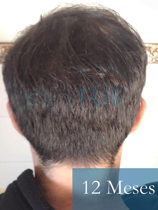 Sergio 26 años Alicante trasplante capilar turquia 12 Meses 5