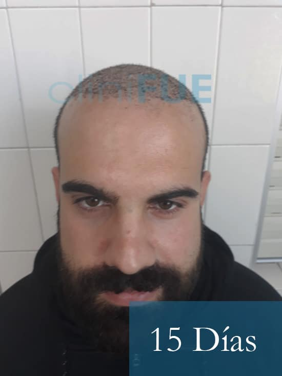 Sergio 26 años Alicante trasplante capilar turquia 15 dias 1