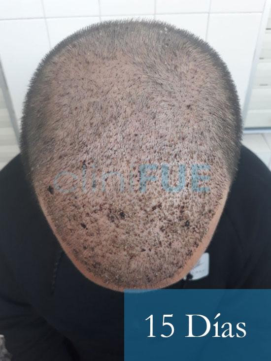 Sergio 26 años Alicante trasplante capilar turquia 15 dias 2