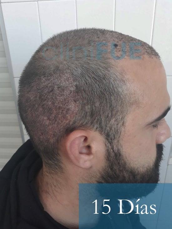 Sergio 26 años Alicante trasplante capilar turquia 15 dias 3
