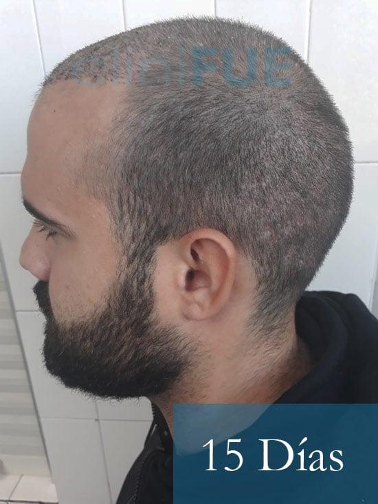 Sergio 26 años Alicante trasplante capilar turquia 15 dias 4