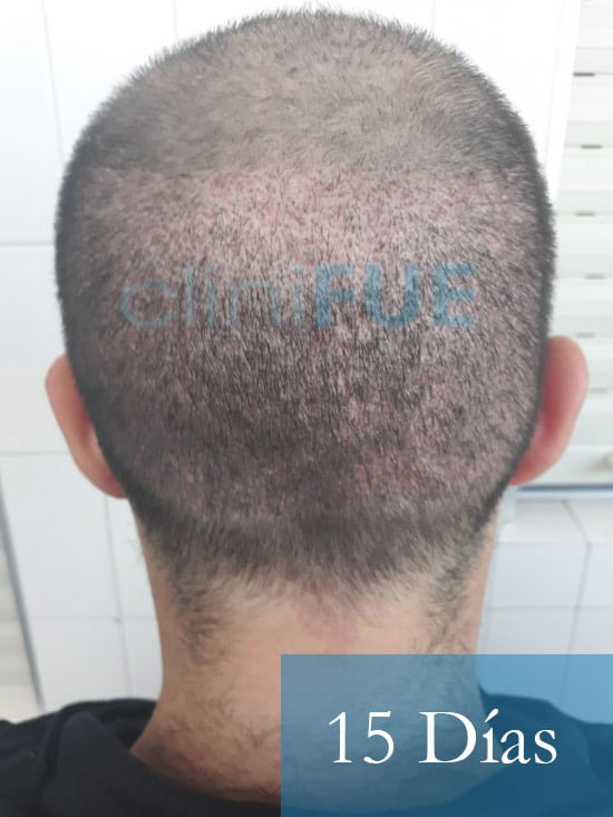 Sergio 26 años Alicante trasplante capilar turquia 15 dias 5
