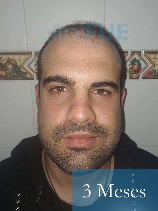 Sergio 26 años Alicante trasplante capilar turquia 3 Meses 1
