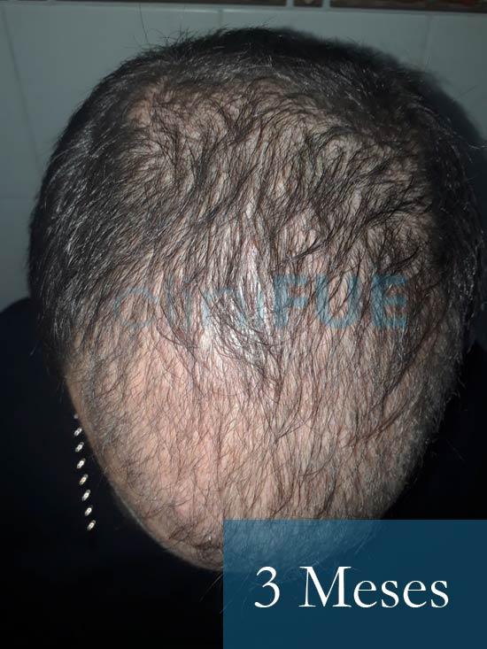 Sergio 26 años Alicante trasplante capilar turquia 3 Meses 2