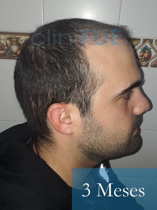 Sergio 26 años Alicante trasplante capilar turquia 3 Meses 3