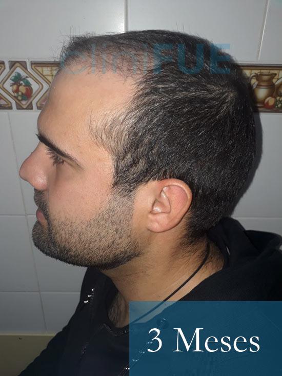 Sergio 26 años Alicante trasplante capilar turquia 3 Meses 4