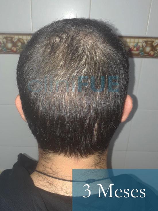 Sergio 26 años Alicante trasplante capilar turquia 3 Meses 5
