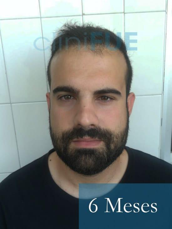Sergio 26 años Alicante trasplante capilar turquia 6 Meses 1